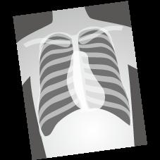 ②胸のエックス線写真