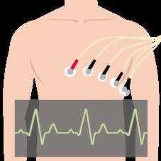 ③心電図検査